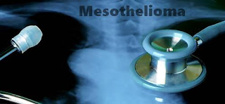 The Dreadful Mesothelioma
