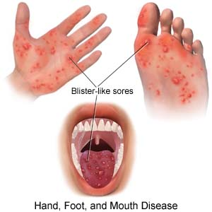 Sharing is Caring: Hand, Foot and Mouth Disease