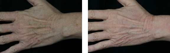 6 amazing hand rejuvenation photos