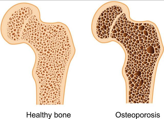Lifestyle Factors to Control Bone Loss Causes, Symptoms, Treatment