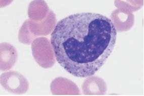 Transitional form between a metamyelocyte and a band cell.