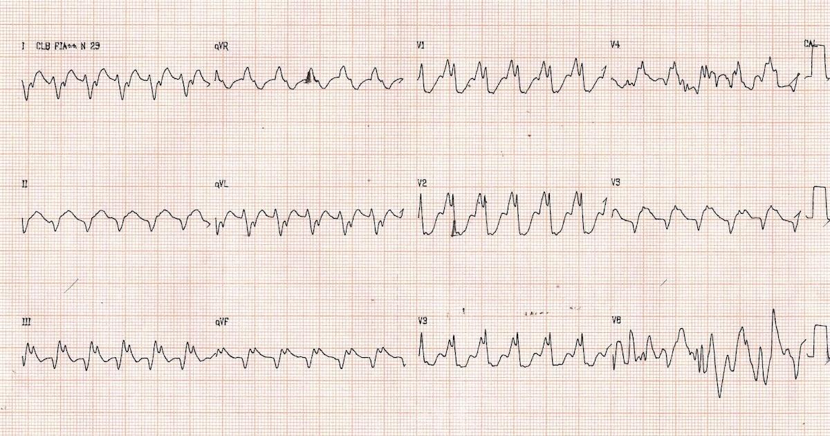 Blog De Eletrocardiografia Qual O Diagnostico 28