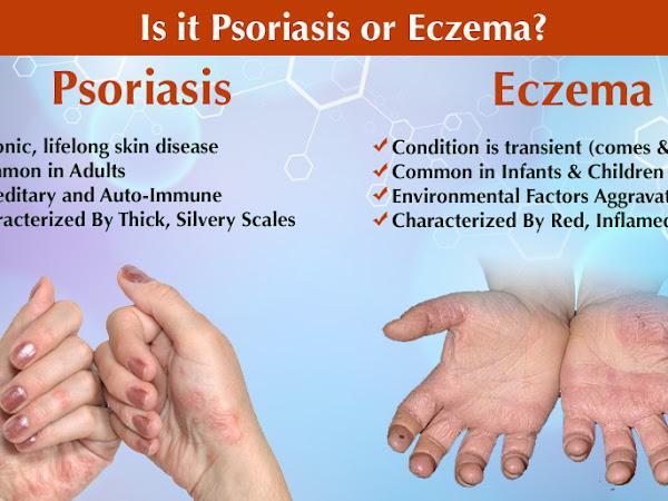 Mengenal Psoriasis : Penyebab dan Pengobatannya