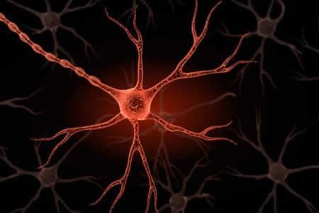 la neuropatia