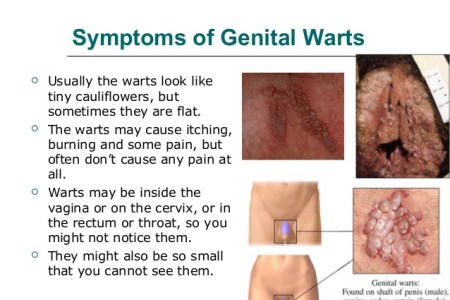 GENITAL WARTS & DANGERS IT POSE TO YOUR HEALTH!