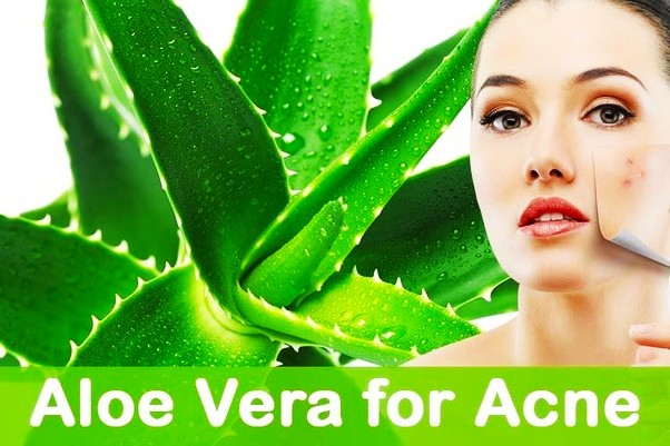 Aloevera for acne