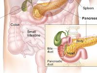 Metastatic Neuroendocrine Cancer Prognosis