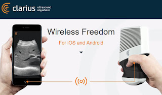 Clarius Mobile Health Develop Wireless Ultrasound Scanner For Smartphones
