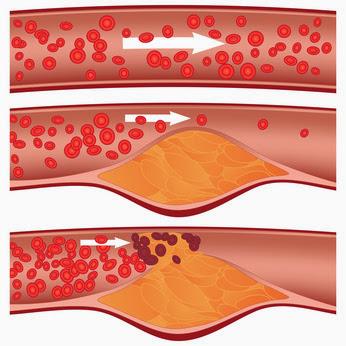 combattere il Colesterolo cattivo
