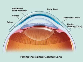 DR. OZ Contact Lenses User Guide