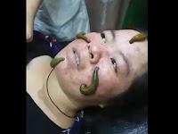 Viral Video Facial Pakai Lintah untuk Sedot Jerawat