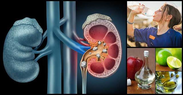 Natural Ways To Help Get Rid Of Kidney Stones
