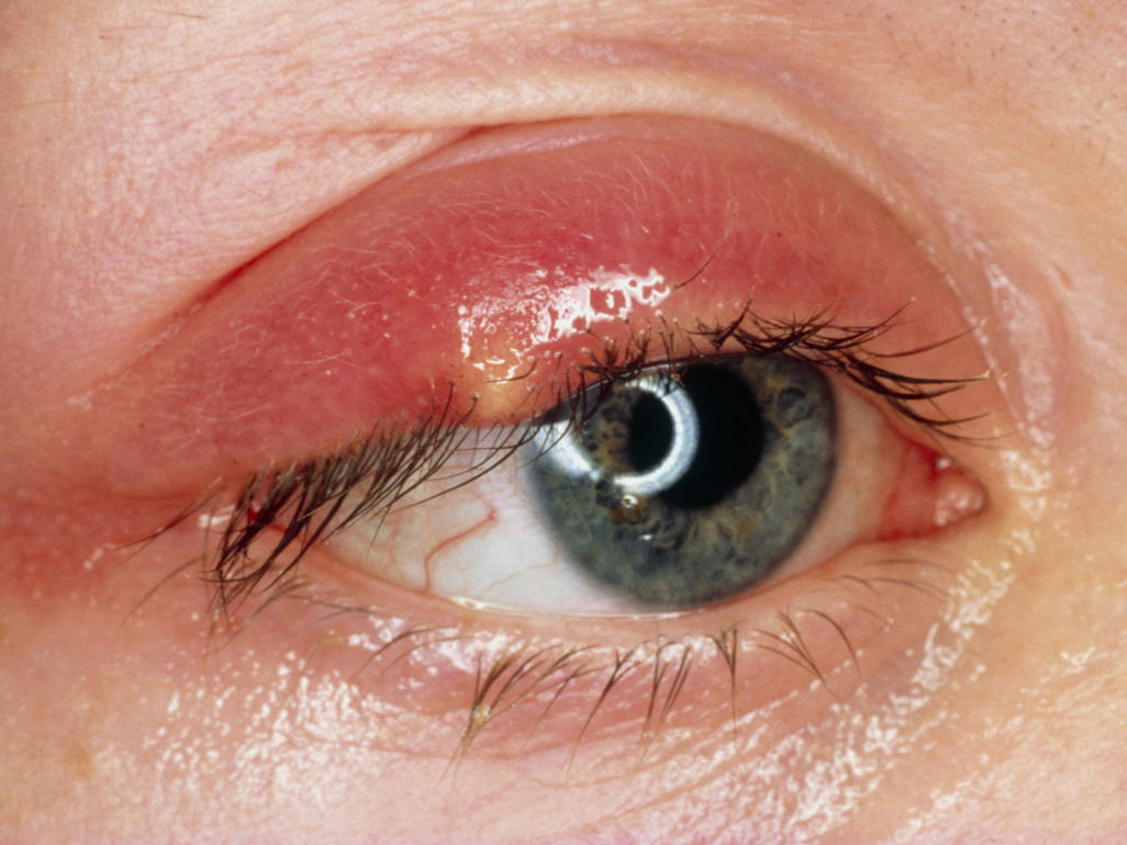Stye - Symptoms and Treatment | Health Secrets and Tips