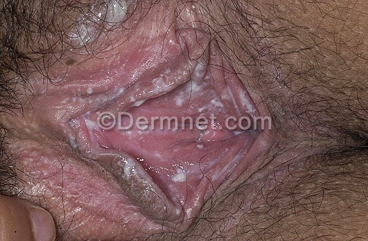 Vaginal candida krusei de alta