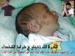 طفل يولد واسمه مكتوب على خده - سبحان الله 47.jpg