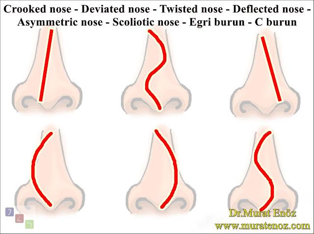 Eğri burun şekilleri - Eğri burun nedenleri - Eğri burun tanımı - Eğri burun estetiği - Eğri burun ameliyatı - Eğri burun tedavisindeki zorluklar - Crooked nose - Deviated nose - Twisted nose - Deflected nose - Asymmetric nose - Scoliotic nose - Eğri burun - C burun