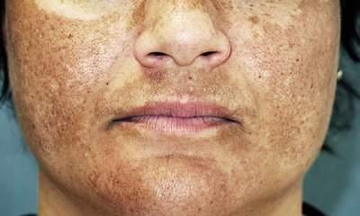 وصفة مجربة لازالة الكلف والبقع البنية من الوجه