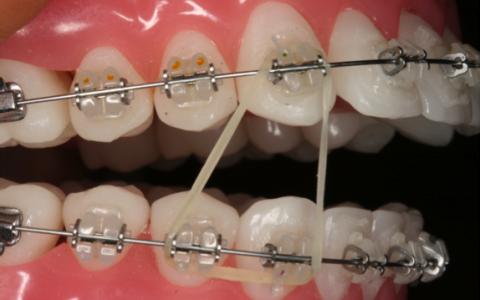 Elásticos Intermaxilares Linear Unit Ortodoncia Para Qué Sirven Las Gomas De Los Brackets Porque Se Ponen Elasticos En Los Brackets