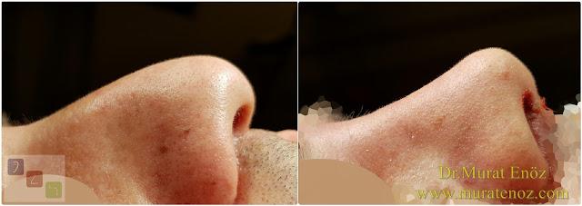Burun estetiği ile birlikte septum perforasyonu kapatılması - Burun septumunda delik kapatılması - Burun septum perforasyonu ameliyatı - Erkek burun estetiği - Septum perforation closure in Istanbul - Septum perforation closure with under skin tissue - Closure of nasal septal perforations using under skin tissue - Combining rhinoplasty with septal perforation repair - Rhinoplasty in men Istanbul - Nose job in men Istanbul - Rhinoplasty in men Turkey - Erkek burun estetiği fotoğrafları - Burun estetiği Bakırköy