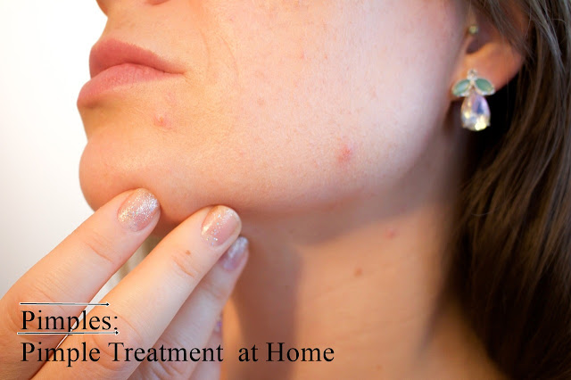 ance face and home remedies treatment for pimples