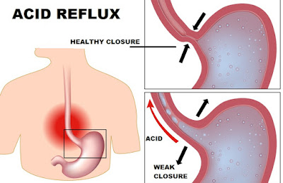 Easy Advice For Reducing And Relieving Your Heartburn