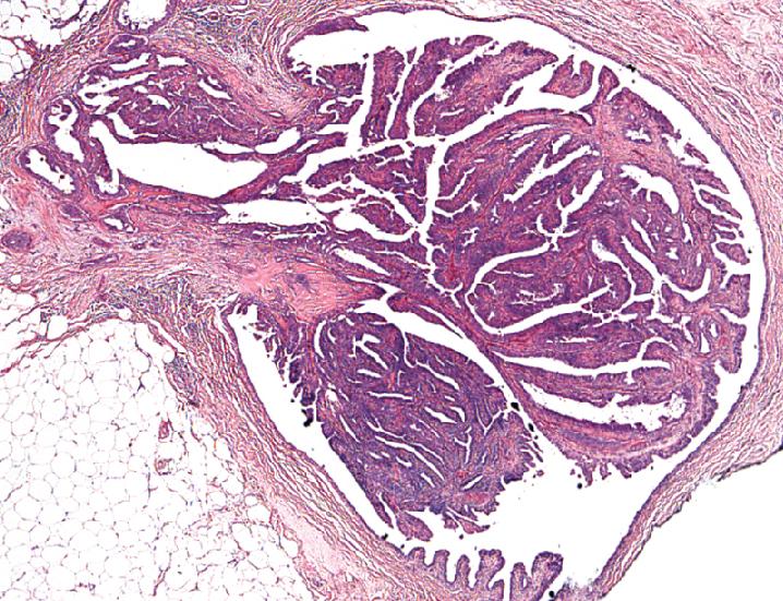 Papiloma esclerosante? ¿Qué es el intraductal