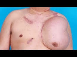 Man Grows New Face On His Chest After Electrocution