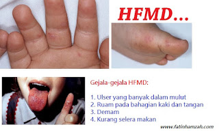 gejala_hfmd