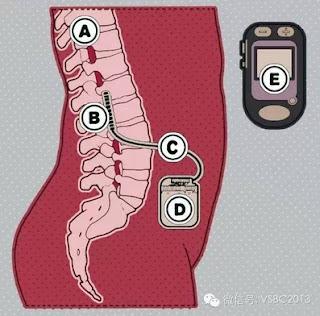 sistema inverte paralisi