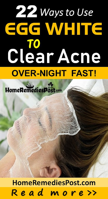 Egg White For Acne, Egg White Acne, Egg White And Acne, How To Get Rid Of Acne, How To Get Rid Of Acne Fast, Home Remedies For Acne, Acne Treatment, Is Egg White Good For Acne, How To Get Rid Of Acne With Egg White, How To Use Egg White For Acne,