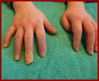 The Sharp Syndrome, Mixed Connective Tissue Disease, MCTD