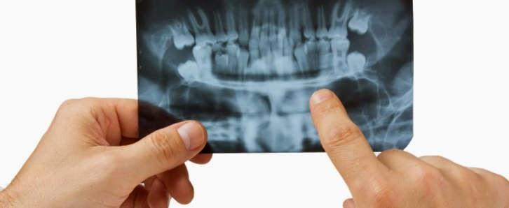 Comment devenir un endodontiste