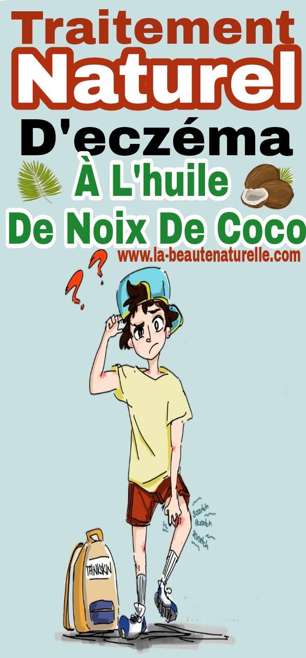 Traitement naturel d'eczéma à l'huile de noix de coco