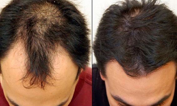 زراعة الشعر في جدة