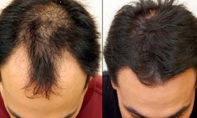 تجربة زراعة الشعر في جدة
