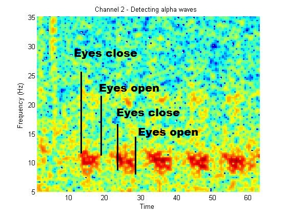 how to detect bad eeg channels psd