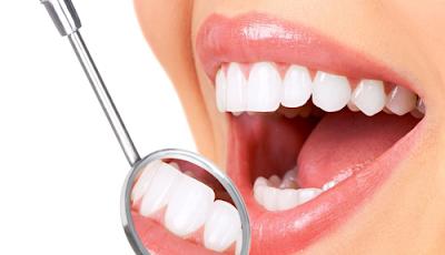 Cách làm răng đều không cần niềng phổ biến
