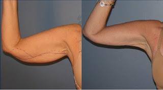 Como quitar flacidez en brazos con cirugia plastica en Guadalajara Mexico