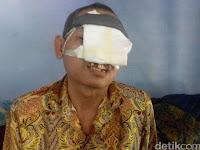 Pria Paruh Baya Asal Sukorejo Ini Rawat Sendiri Wajahnya yang Nyaris Habis karena Kanker