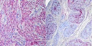Neurofibroma vs Schwannoma pathology