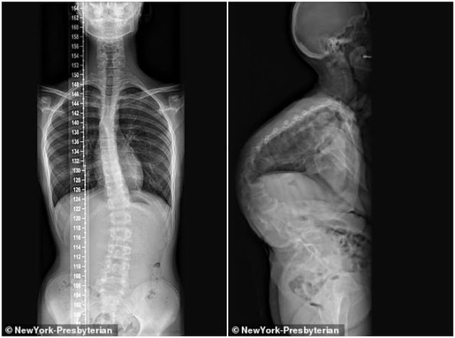 17 Tahun Tulang Belakangnya 'Memutar', Seperti Ini Bentuk Tubuh John Sarcona Pasca Operasi