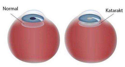 katarakt nedir,kataraktlı göz,normal göz,katarakt belirtileri nelerdir,katarakt tedavisi