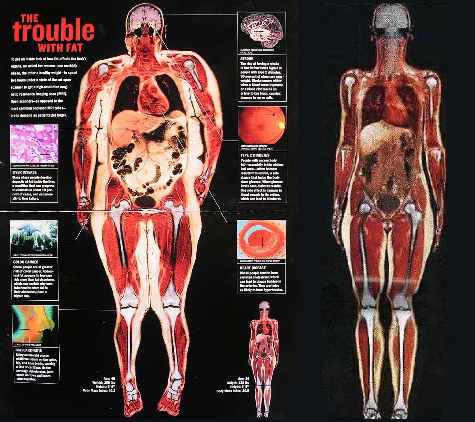 Understanding Body Composition Obesity Body Fat