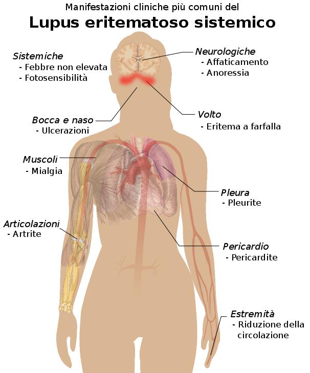 lupus eritematoso sistemico dieta pdf