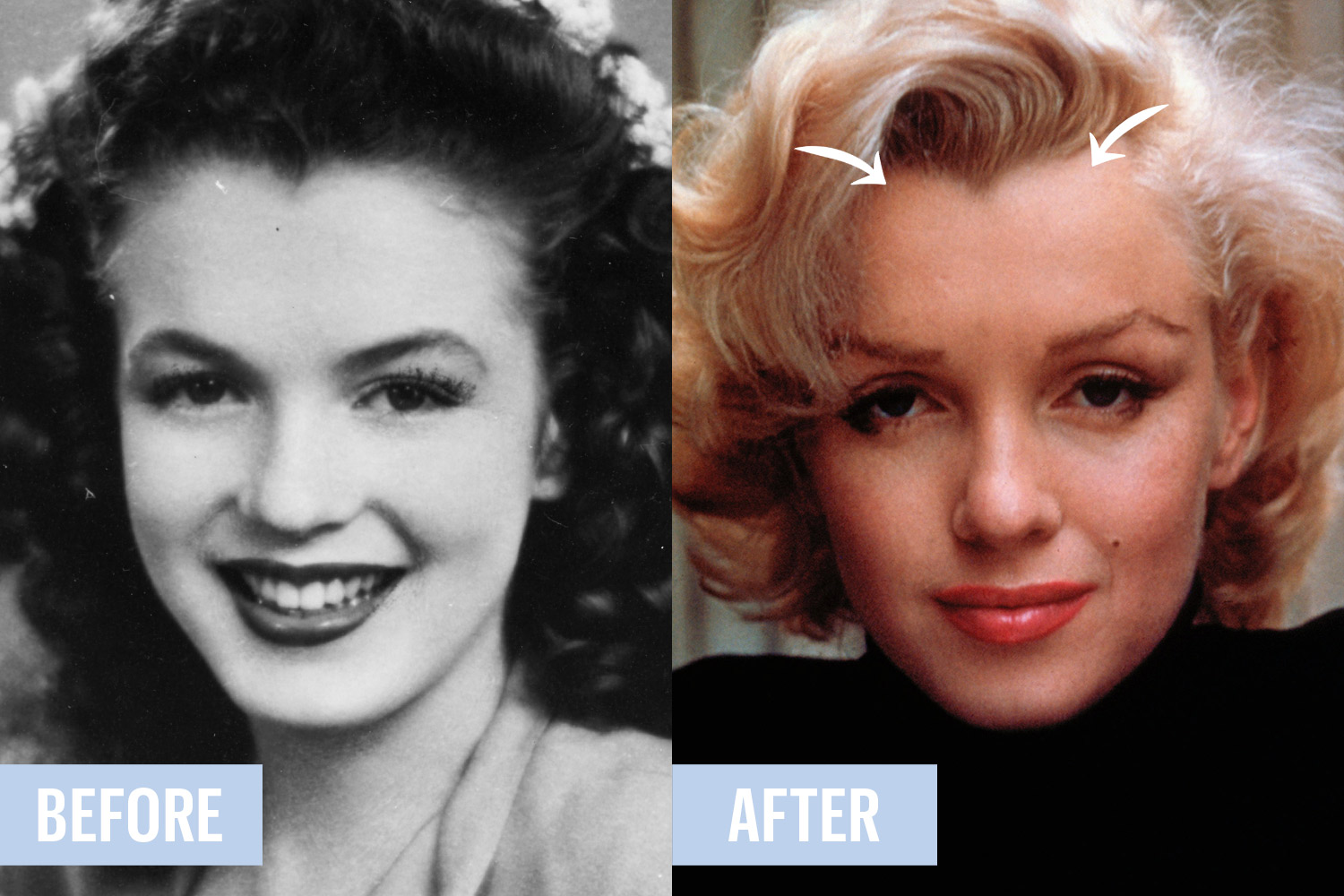 Old Hollywood Plastic Surgery Secrets Here Are 4 Weird