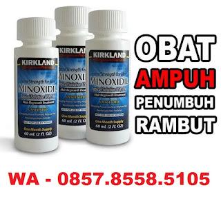 Jual Minoxidil Kirkland Surabaya