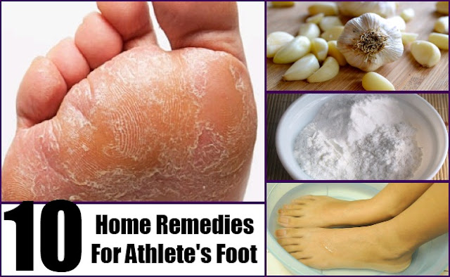 Home Remedies For Itchy Smelly Feet