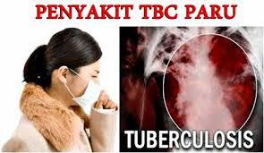 Obat tradisional penyakit tbc paru