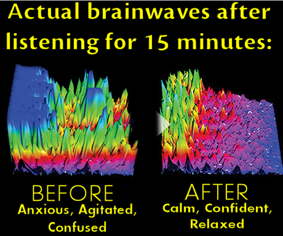 Mag ic Resonance Imaging Mri Of Multiple Sclerosis also The Top 33 Prebiotic Foods For Your Digestive System besides Music Therapy This Creative Practice moreover Michaele Salahie Im Not An Anorexic I Have Multiple Sclerosis also 84034310 Understanding Probiotics And The Human Microbiome. on brain immune system