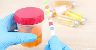 تحليل انزيم ووظائف الكبد